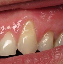 ​ © Thirroul Dental Studio Dentist North Wollongong Dentist 0101 Gum Solutions Thumb