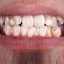 Crowded, Spaced or Crooked Teeth