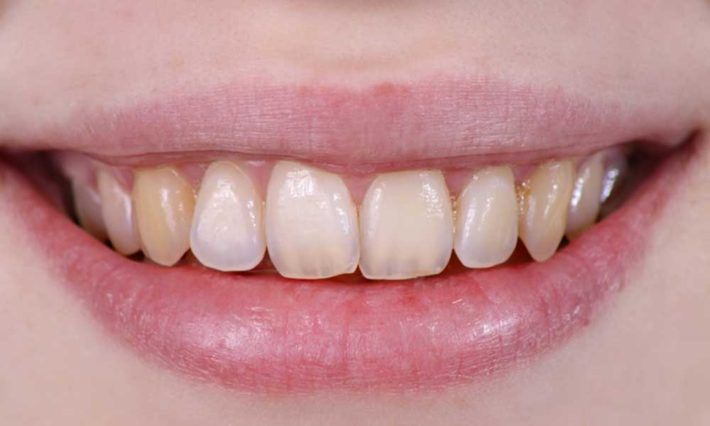 ​ © Thirroul Dental Studio Dentist North Wollongong Dentist 010102 Cosmetic Solutions Discoloured Teeth
