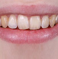 ​ © Thirroul Dental Studio Dentist North Wollongong Dentist 010102 Cosmetic Solutions Discoloured Teeth Thumb