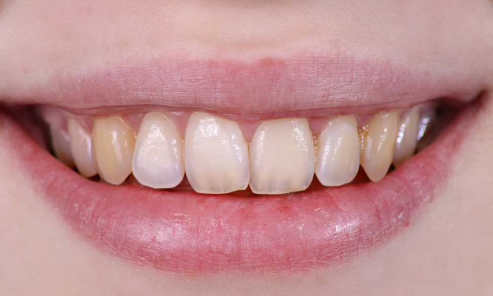 Thirroul Dental Studio Dentist North Wollongong Dentist 010102 Cosmetic Solutions Discoloured Teeth