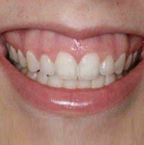 ​ © Thirroul Dental Studio Dentist North Wollongong Dentist 010102 Cosmetic Solutions Gummy Smile Thumb
