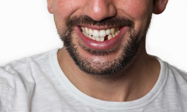 Thirroul Dental Studio Dentist North Wollongong Dentist 010102 Cosmetic Solutions Missing Teeth