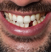 ​ © Thirroul Dental Studio Dentist North Wollongong Dentist 010102 Cosmetic Solutions Missing Teeth Thumb