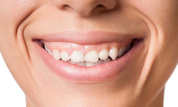 Thirroul Dental Studio Dentist North Wollongong Dentist 010102 Cosmetic Solutions Worn Teeth