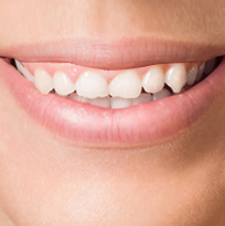 ​ © Thirroul Dental Studio Dentist North Wollongong Dentist 010102 Cosmetic Solutions Worn Teeth Thumb