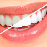 Teeth Solutions (Restorative)