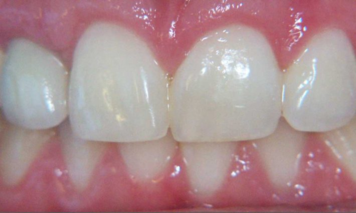Thirroul Dental Studio Dentist North Wollongong Dentist 0103 Gum Reshaping Contouring After