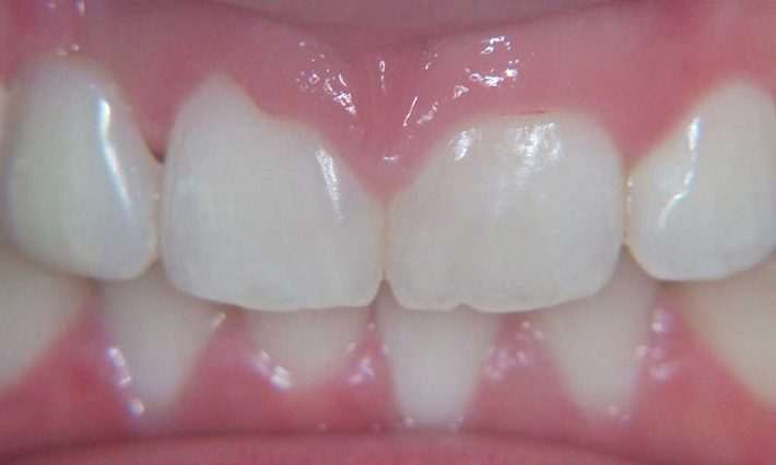 Thirroul Dental Studio Dentist North Wollongong Dentist 0103 Gum Reshaping Contouring Before