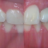 Thirroul Dental Studio Dentist North Wollongong Dentist 0103 Gum Reshaping Contouring Thumb.jpg