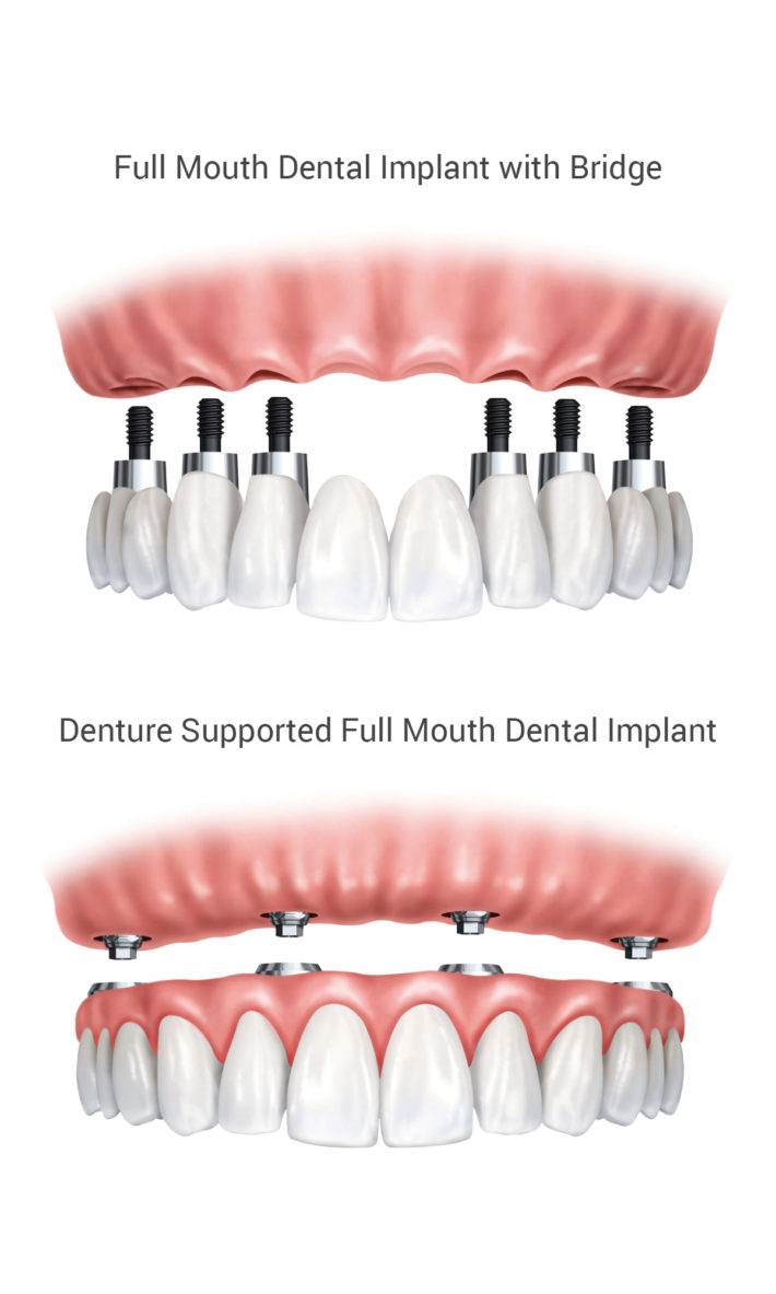 ​ © Thirroul Dental Studio Dentist North Wollongong Dentist 0303 Dental Implant