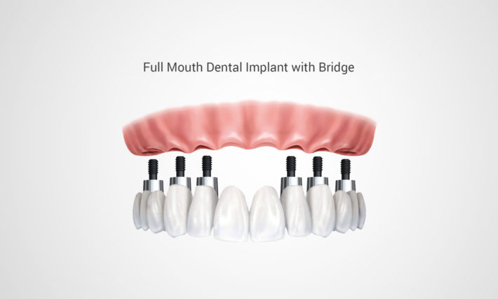 ​ © Thirroul Dental Studio Dentist North Wollongong Dentist 0303A Dental Implant