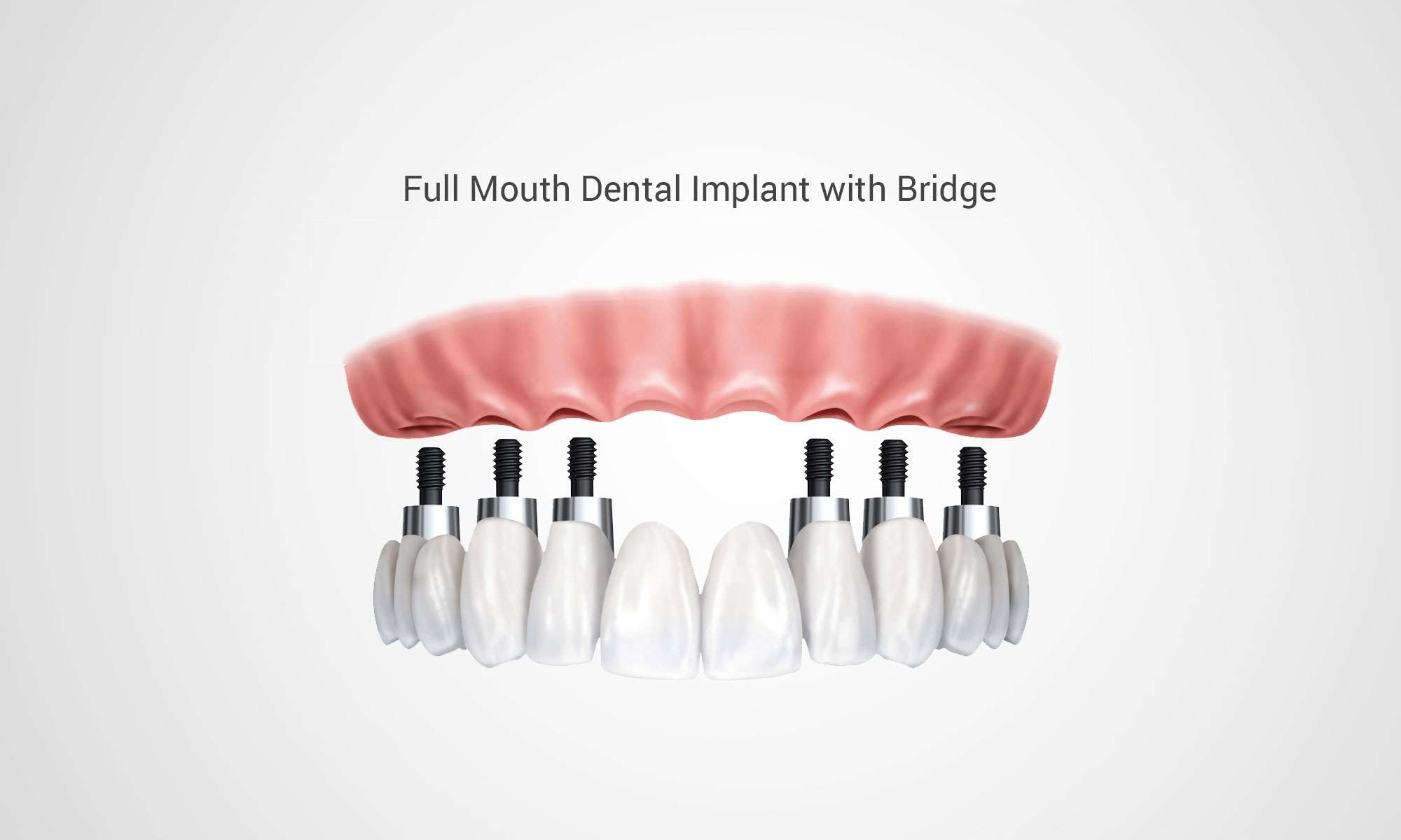 Thirroul Dental Studio Dentist North Wollongong Dentist 0303A Dental Implant