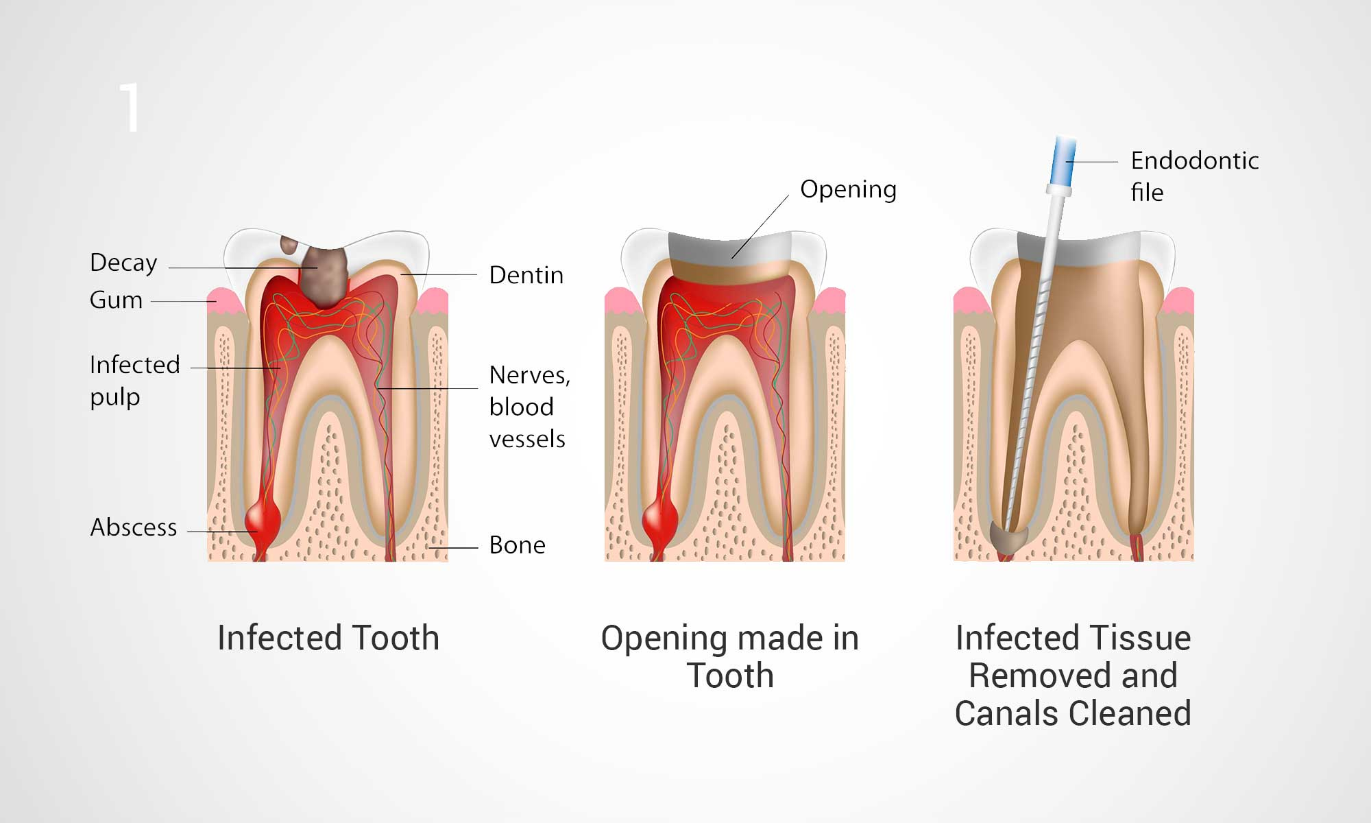 Thirroul Dental Studio Dentist North Wollongong Dentist 0303a Root Canal