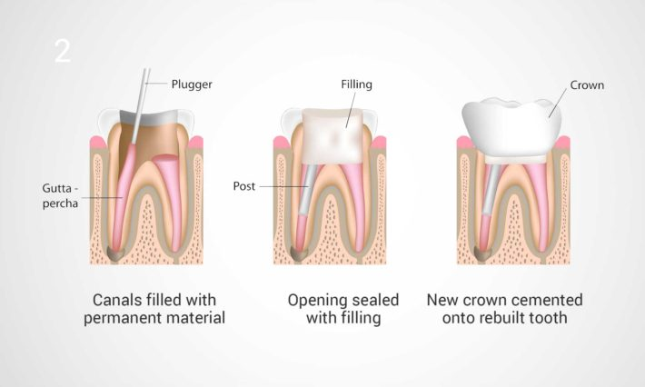 ​ © Thirroul Dental Studio Dentist North Wollongong Dentist 0303b Root Canal
