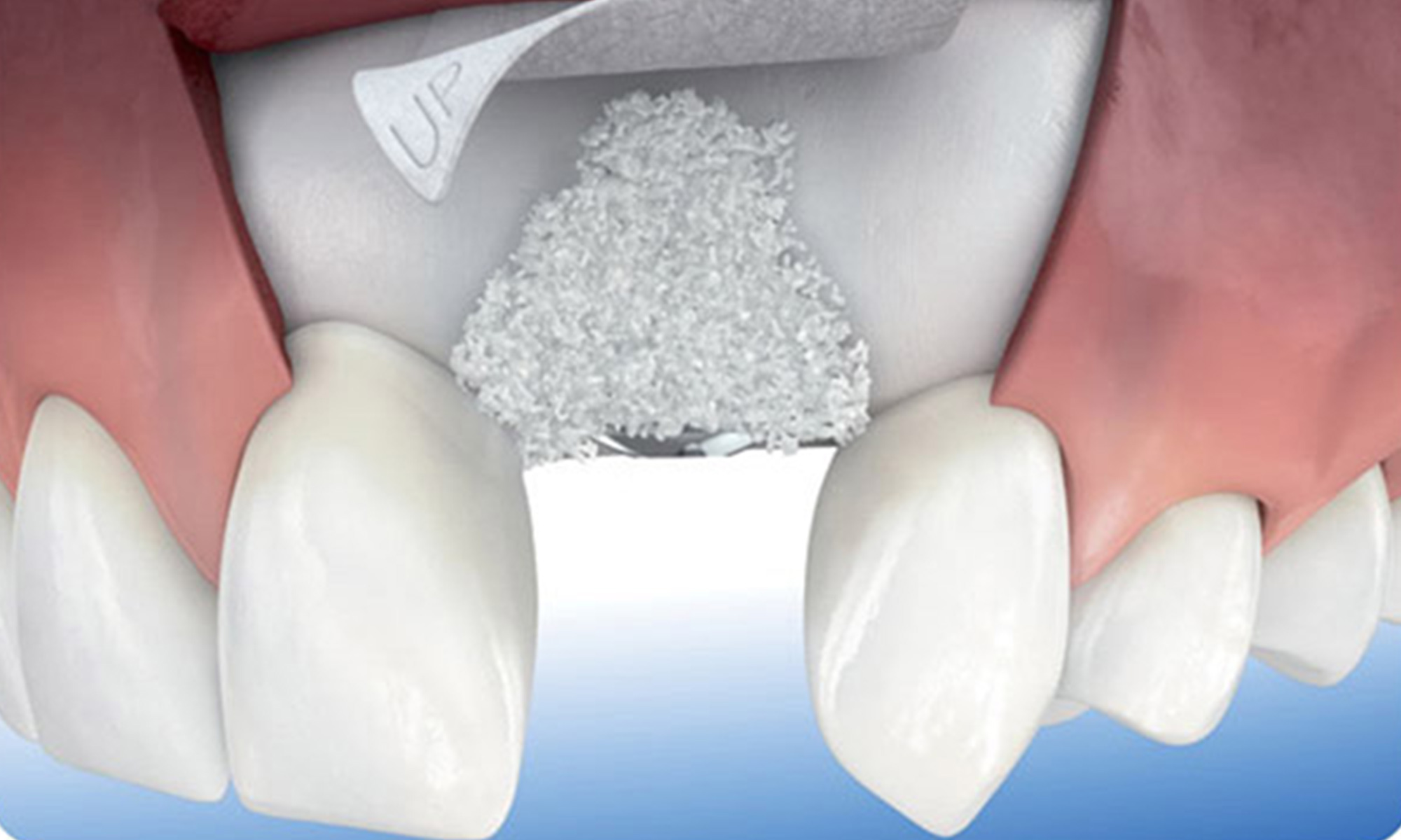Thirroul Dental Studio Dentist North Wollongong Dentist 0304 Bone Grafting