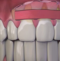 ​ © Thirroul Dental Studio Dentist North Wollongong Dentist 0305 Thumb Gum Grafting