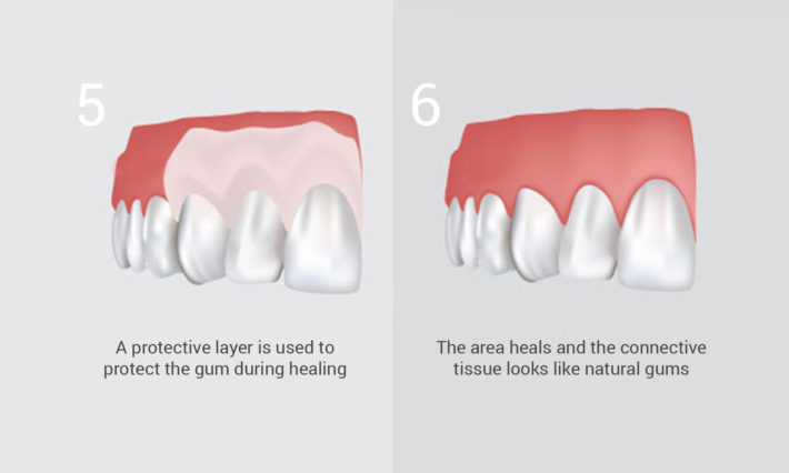 ​ © Thirroul Dental Studio Dentist North Wollongong Dentist 0305c Gum Grafting
