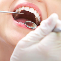 Thirroul Dental Studio Dentist North Wollongong Dentist 0306 Teeth Cleaning Thumb