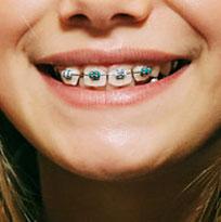 Thirroul Dental Studio Dentist North Wollongong Dentist 0401 Thumb
