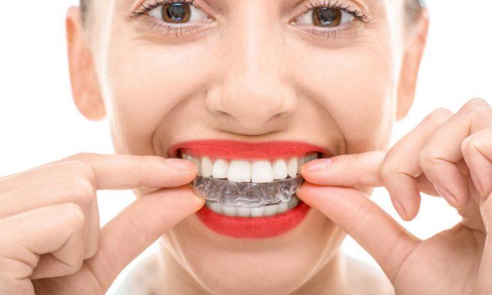  © Thirroul Dental Studio Dentist North Wollongong Dentist 0405
