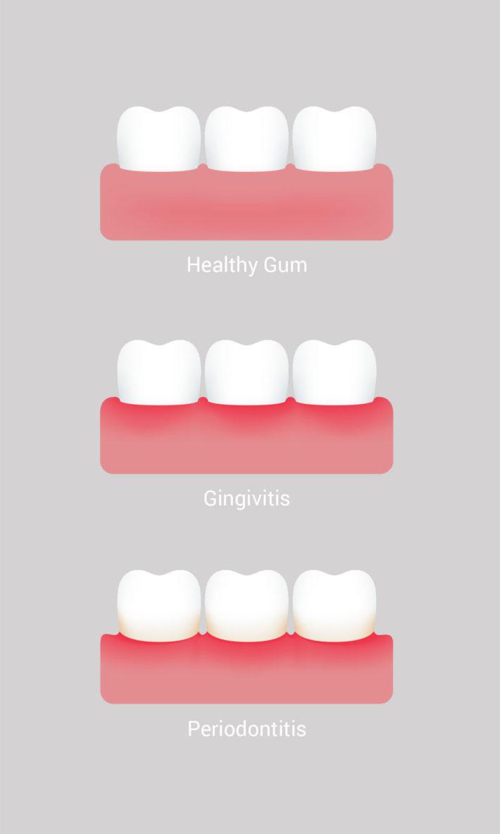  © Thirroul Dental Studio Dentist North Wollongong Dentist 0501