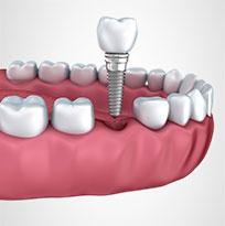 Thirroul-Dental-Studio-Dentist-North-Wollongong-Dentist-0301-Thumb-Dental-Implant