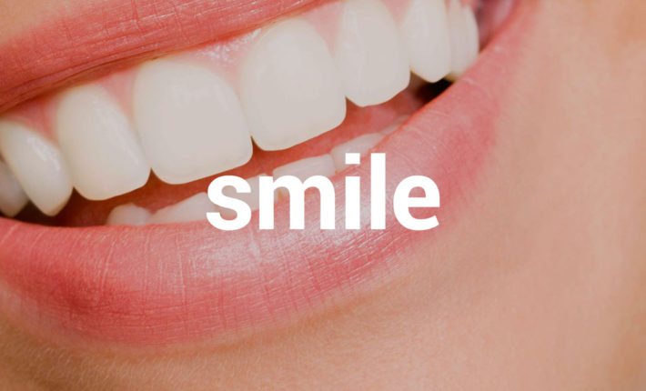 © Thirroul Dental Studio Dentist North Wollongong Dentist 05 Smile Analysis